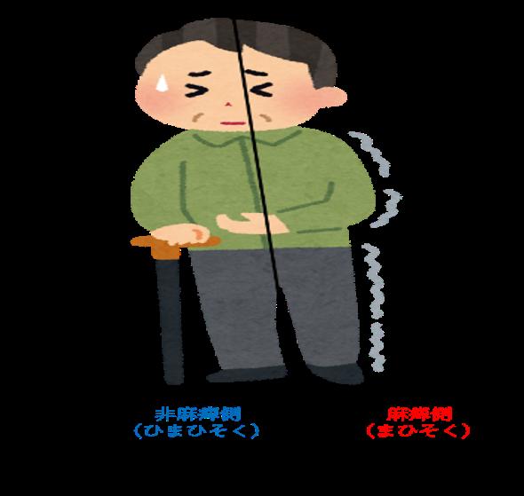 脳梗塞後遺症 麻痺していない半身への影響 |非麻痺側体幹にはどんな問題が起こる?